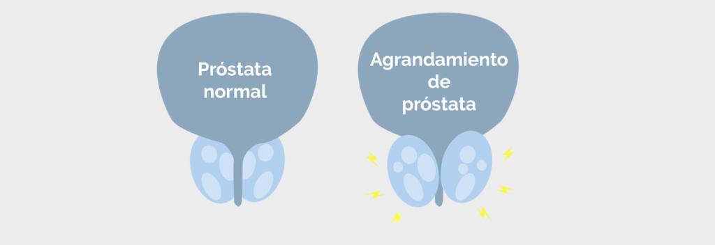 prostata e incontinencia urinaria